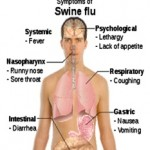 SWINE FLU – Symptoms and Vaccines